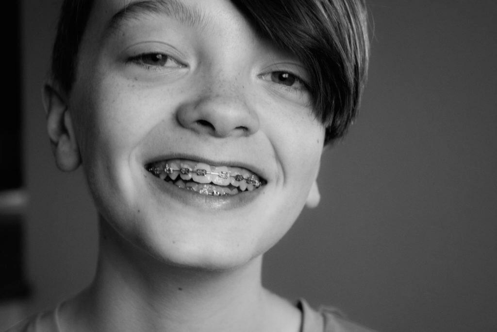 Boy wearing braces, smiling